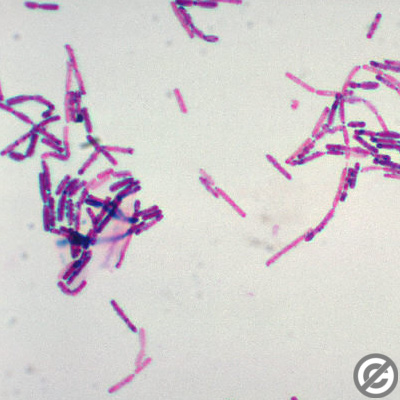 bacillus cereus paper B cereus has been known to cause food-borne illness (most notably fried-rice syndrome), as well as skin infections (most commonly keratitis) in humans in some animals, b cereus can be used as a probiotic.